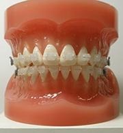 複合材料による透明な矯正歯科治療用ワイヤーの開発