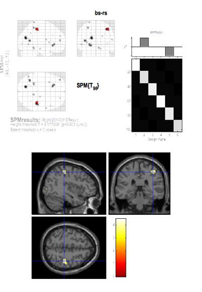 笑顔を見ている時の右にずらして噛んだ時の脳機能の低下領域におけるfMRI解析